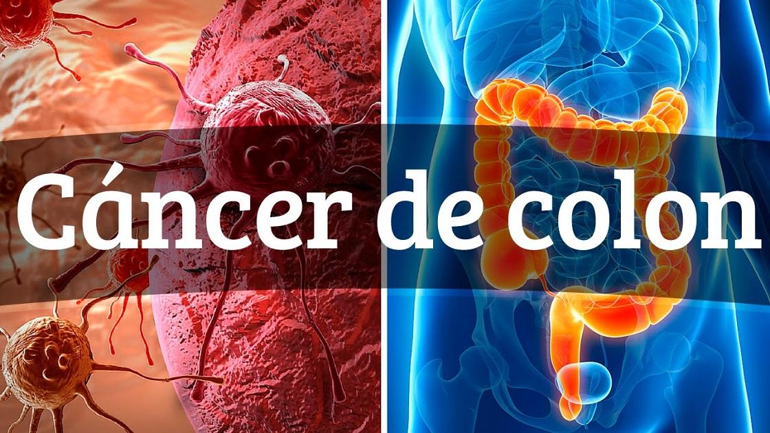 Día de la prevención del cáncer de colon (31 de Marzo)