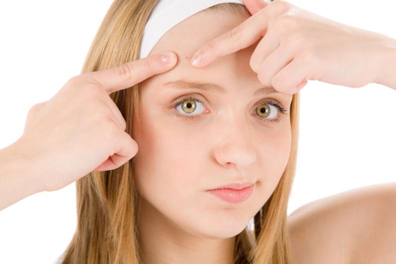 ¡Mito y Realidad! #21 ( El acné)