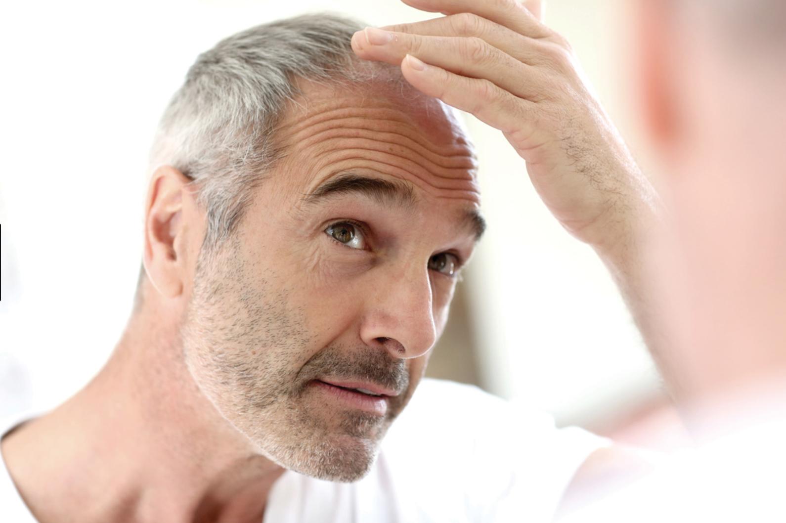 Calvicie o alopecia. Se me cae el pelo: ¿Qué puedo hacer?
